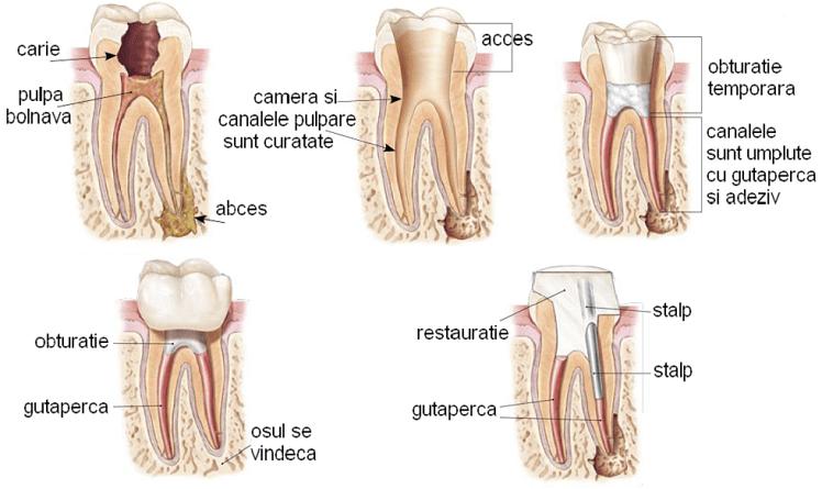 endodontie1-748x445-min